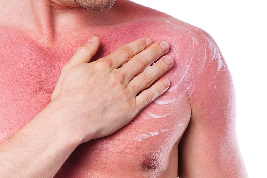 jet news protección para la piel