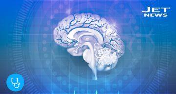 Cómo prevenir un infarto cerebral